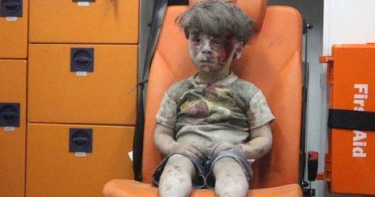 Suriye savaşının simgesi küçük Ümran bulundu mu