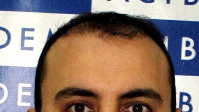 Doç.Dr. Özkırış: Orta kulak enfeksiyonu, en çok çocukları tehdit ediyor