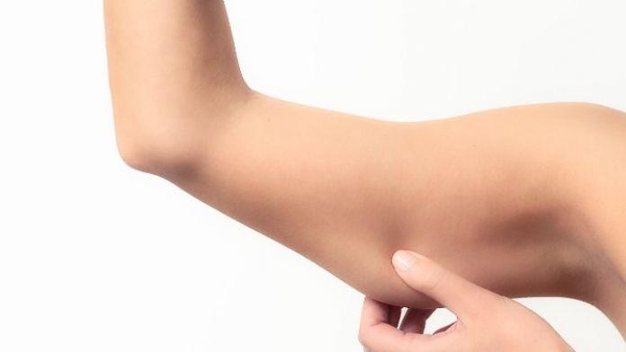 Sallanan Kollar İçin Bir Çözüm De Kol Germe Ameliyatları