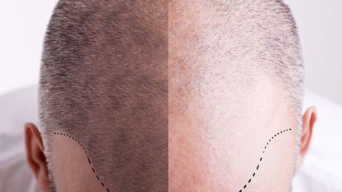 Organik Saç Ekiminin De Taklidi Çıktı
