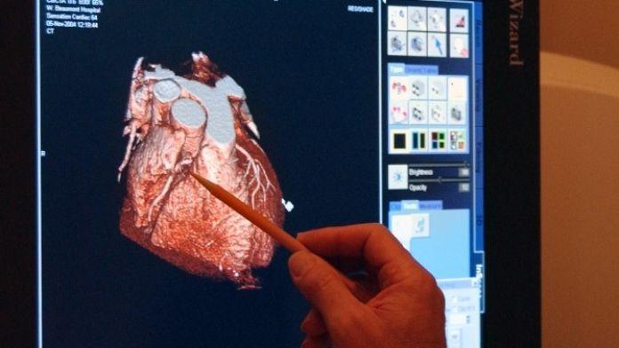 Kalp Damarlarında Oluşan Darlık Kalp Hastalığının En Sık Sebeplerinden