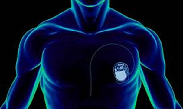 Dünyanın En Küçük Kalp Pili