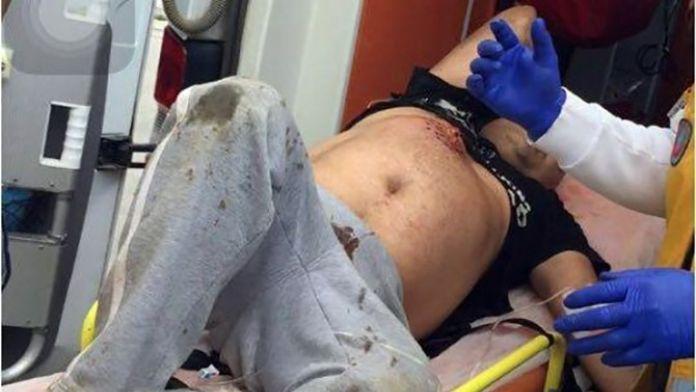 Muğla'da Arazi Kavgası Kanlı Bitti; 1 Ağır, 2 Yaralı
