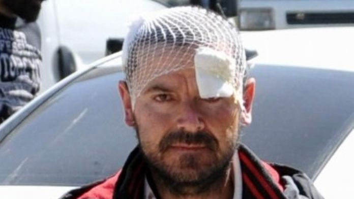 Antalya'da Eşini Bıçaklayıp Vatandaştan Dayak Yiyen Koca Tutuklandı