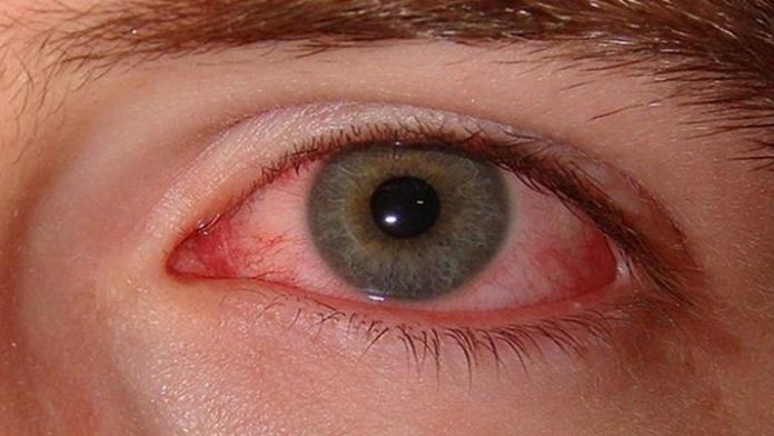 Gözünüzde Kırmızılık Oluşursa Dikkat