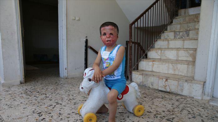 Savaşta yüzü ve vücudu yanan Hamza için umut Türkiye