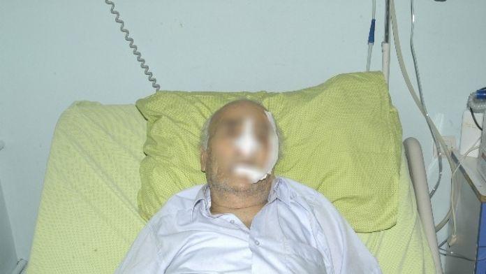 Kocasına Bastonla Vurup Hastanelik Etti