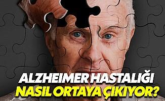 Alzheimer'in tedavisi henüz mümkün değil