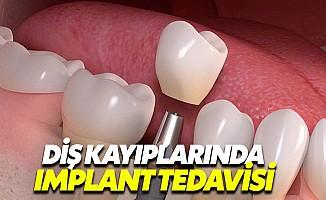Implant tedavisinde çene kemiğinin kalınlığı önemli