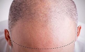 Saç Ekimi Yapmadan Evvel Doğru Analiz ve Planlama Yapılmalı